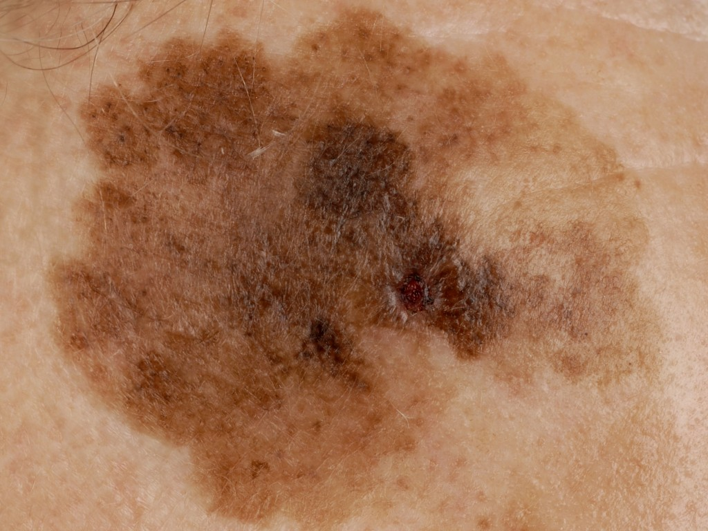 Почему на коже появляются розовые пятна – рассказывают специалисты