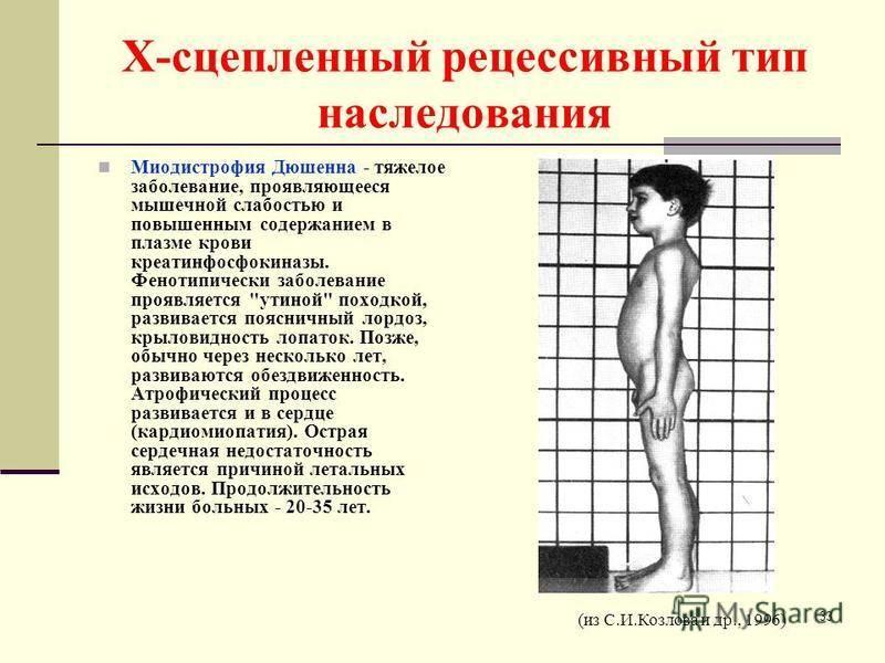 Наследственные миопатии и миодистрофии, их клинические проявления и прогноз