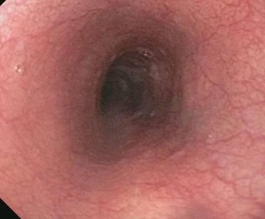 Рефлюкс-гастрит: симптомы и лечение