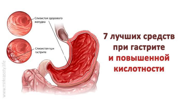 Препараты при гастрите с повышенной кислотностью желудка