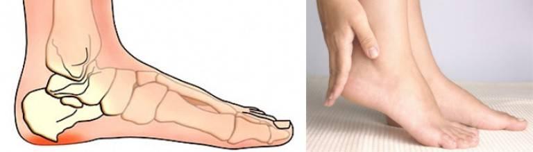 Болят ступни ног по утрам при наступании лечение народными средствами | spinahelp.ru
