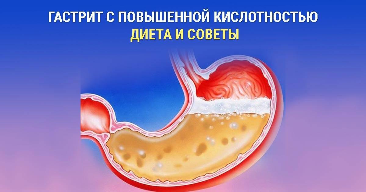 Что можно кушать при гастрите желудка с повышенной кислотностью