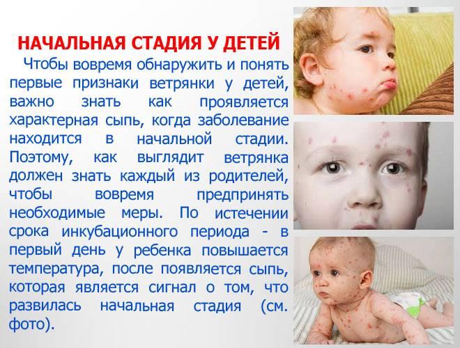 Ветрянка (ветряная оспа) у детей и  взрослых. симптомы. сыпь. лечение. фото