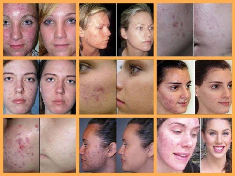 Лечение розацеа кожи. что сделать, чтобы симптомы больше не вернулись?