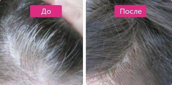 Как избавиться от седины волос ? подробное руководство ©