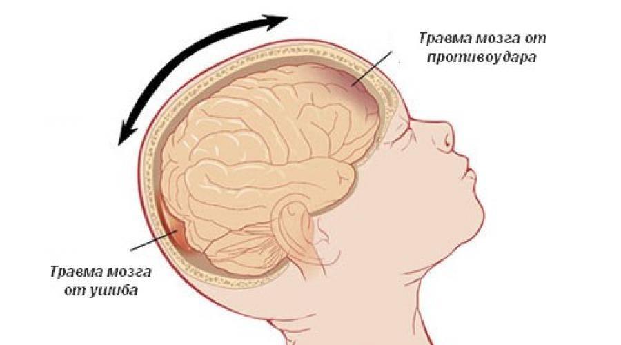 Признаки сотрясения мозга у ребенка 1.5 лет