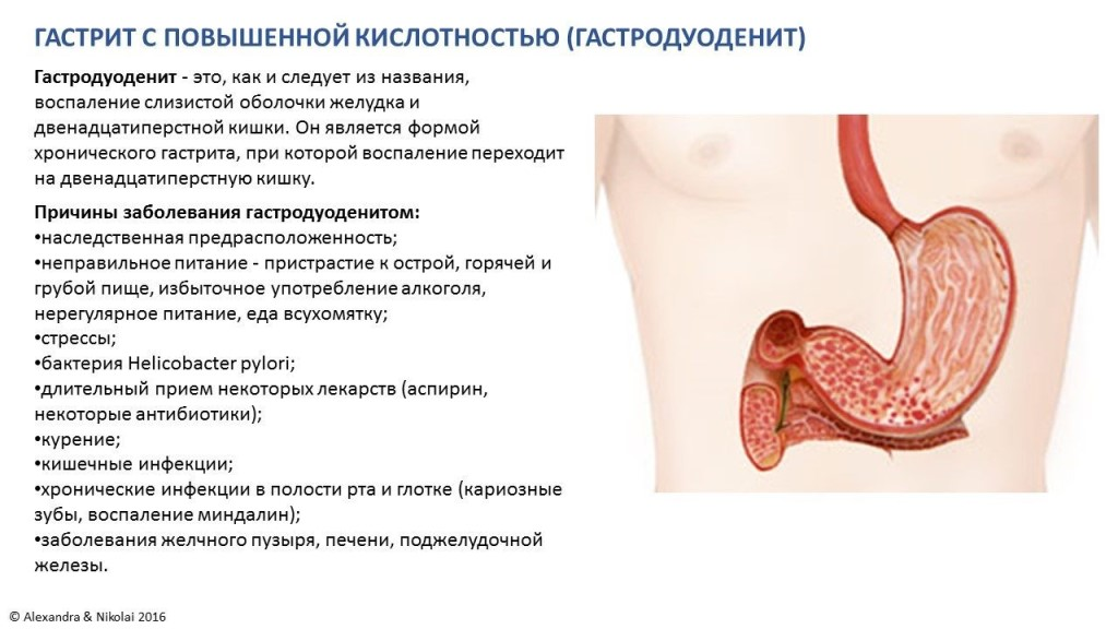 Гиперацидный гастрит: что это такое, симптомы и лечение