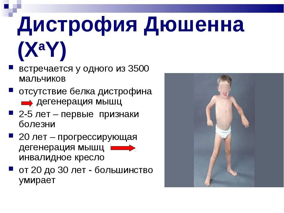 Спинальная мышечная атрофия (1, 2, 3, 4 типов): симптомы, лечение, особенности заболевания у детей