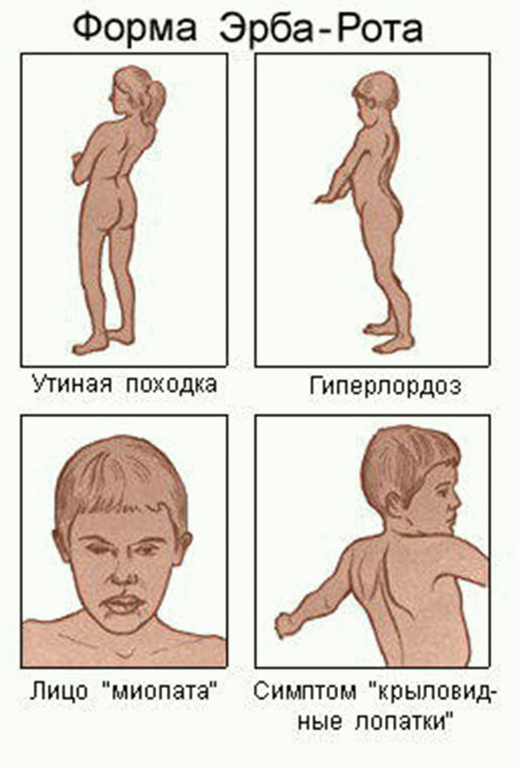 Спинальная мышечная атрофия: виды, причины и лечение