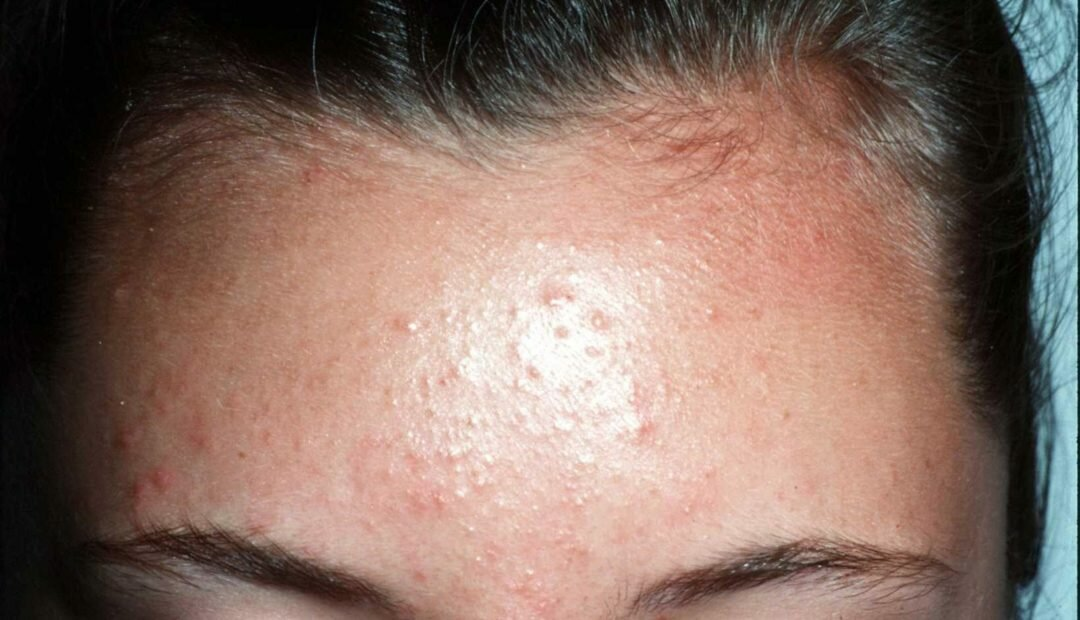 Сыпь на лице у взрослых женщин (мелкая, красная):причины, как убрать высыпания на коже?