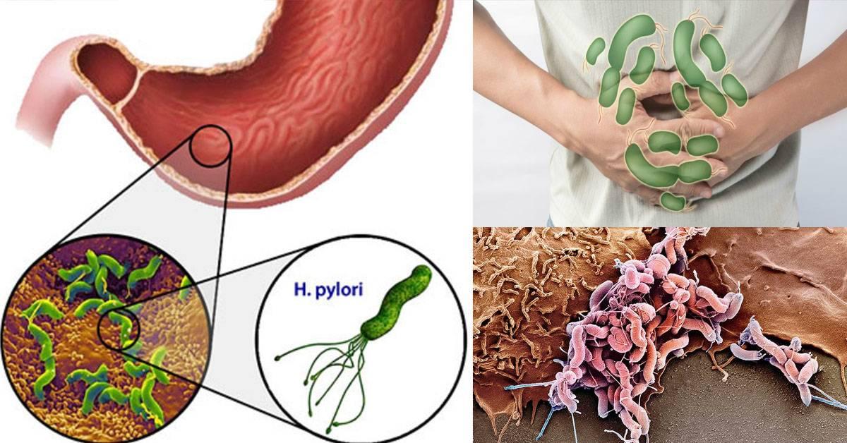 Симптомы острых и хронических гастритов