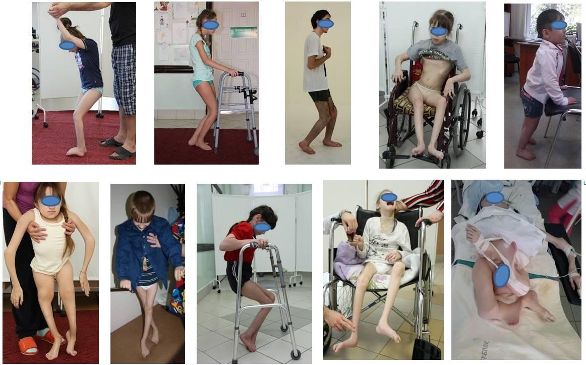 Спинальная мышечная атрофия у детей: симптомы и причины атрофии мышц, особенности 1 и 2 типа, лечение – что делать