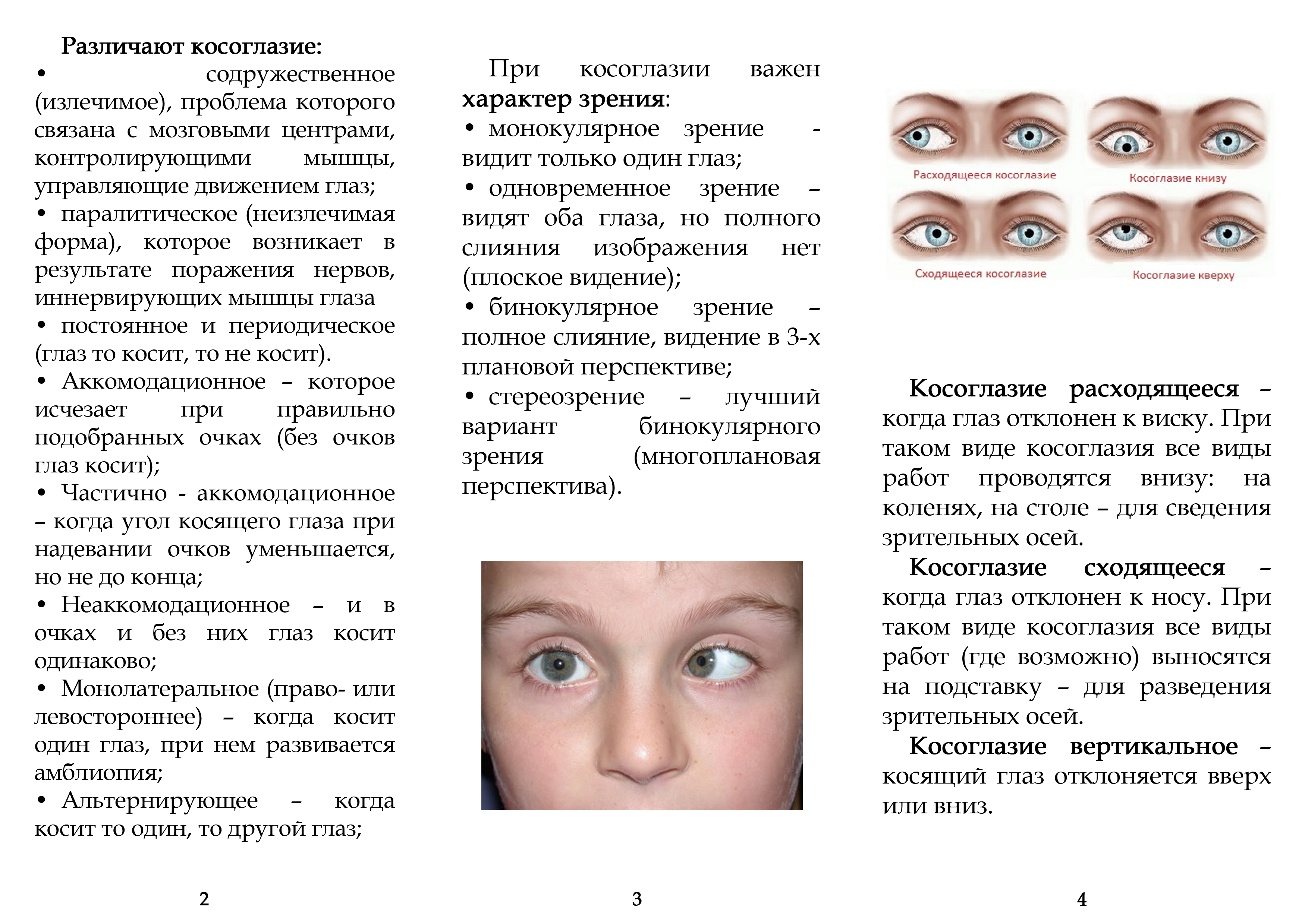 Упражнение от косоглазия у взрослых: отличия патологии от детей, гимнастика для исправления зрения, зарядка при расходящемся и сходящемся страбизме