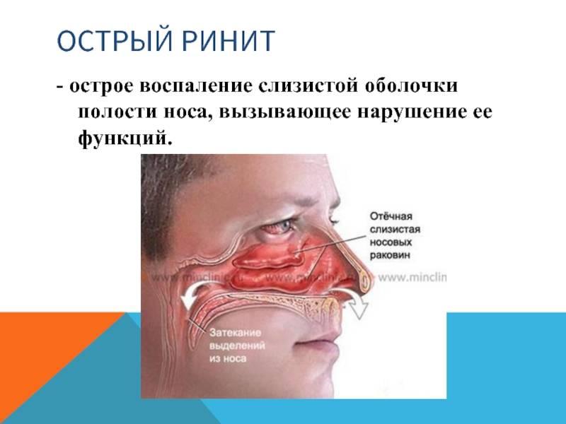 Болезни носа и околоносовых пазух. риниты. синуситы. гайморит. фронтит и др.