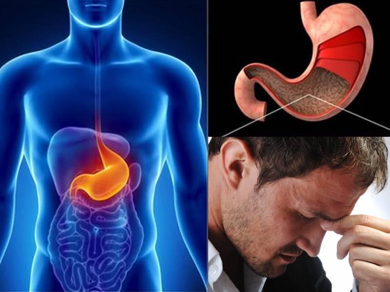 Психосоматика заболеваний желудочно-кишечного тракта (жкт)