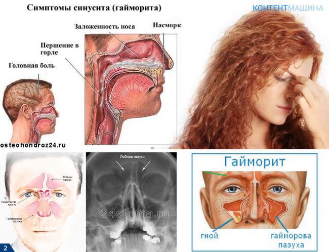 Катаральный синусит – виды и лучшие методы лечения