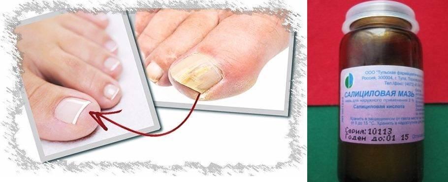 Грибок стопы – лечение грибка на ногах и между пальцами в домашних условиях