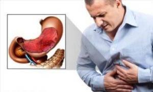 Гастрит желудка: что можно и что нельзя?  причины возникновения, симптомы, лечение в домашних условиях