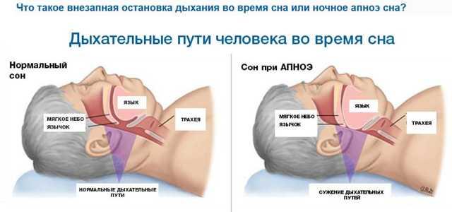 Что такое ночное апноэ и чем опасен этот синдром
