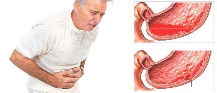 Желудочно-кишечное кровотечение: признаки, симптомы, неотложная помощь, причины