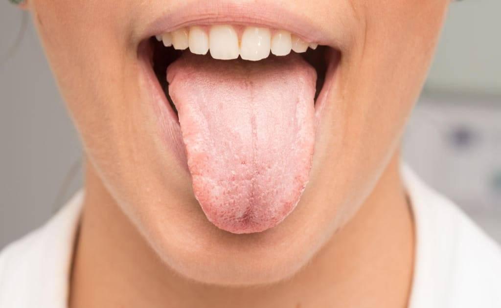 Привкус железа во рту. что это значит, причины у мужчин, женщин, от чего может быть по утрам, после кашля, на языке, губах, если тошнота