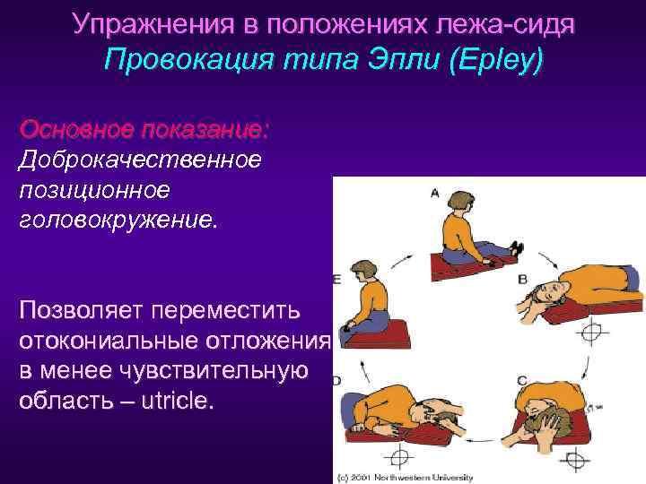 Маневр эпли от головокружения. видео на русском языке, упражнения, отзывы - доктор-мед