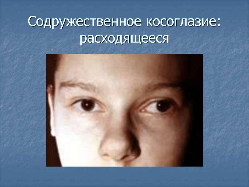 Скрытое косоглазие, причины развития, способы лечения и диагностики.