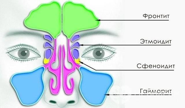 Синусит – лечение лучшими медикаментами и народными средствами