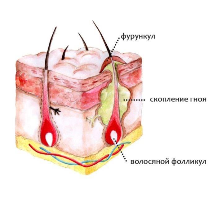 Чирей под мышкой (фурункул) - причины с фото и лечение