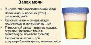 Комаровский: почему у грудного ребенка мутная моча, с осадком и хлопьями?