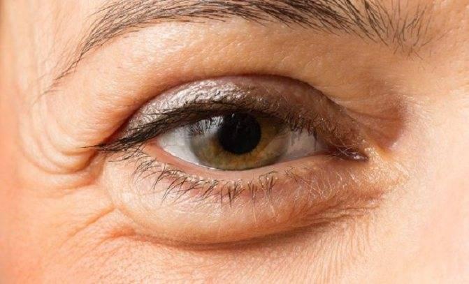 Причины, почему бывает отечность глаз по утрам