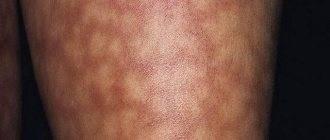 Многоформная экссудативная эритема: причины, лечение заболевания