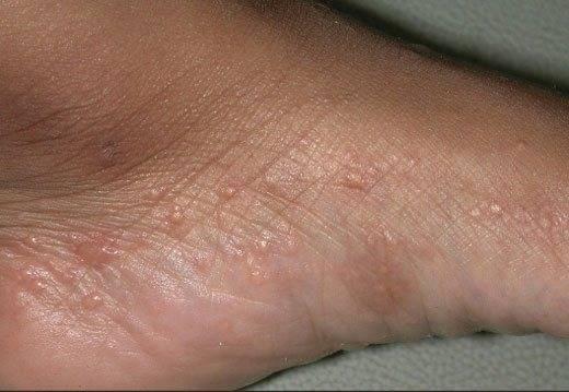 Как лечить экзему на ногах: лечение мазями, кремами и народными средствами