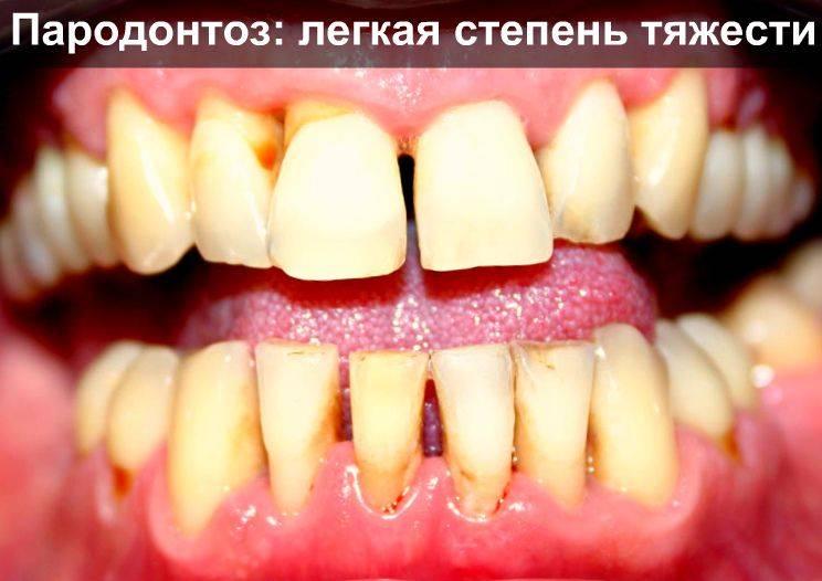 Как спасти зубы от пародонтоза: лечение лекарственными препаратами антибиотики, мази для десен и витамины