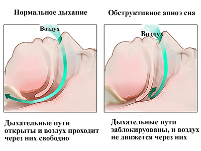Все об апноэ сна и методах его лечения
