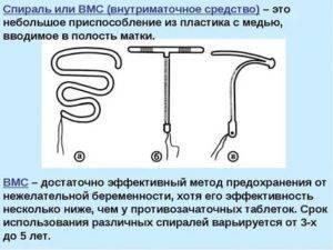 Спираль внутриматочная - виды, цены, форма и состав - какую лучше выбрать и поставить женщине