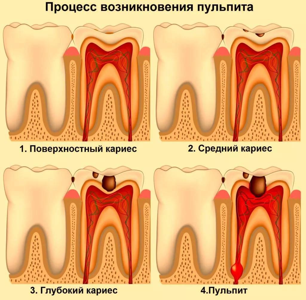 Пульпит: лечение в домашних условиях - как снять боль? | spacream.ru