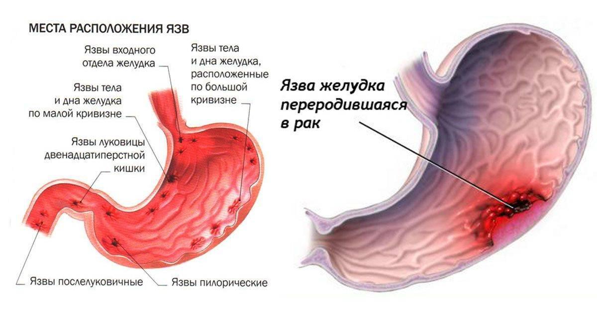 Причины возникновения гастрита и их лечение