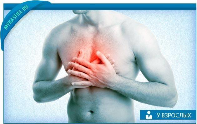 Опоясывающая боль в области грудной клетки и спины, почему болит грудина