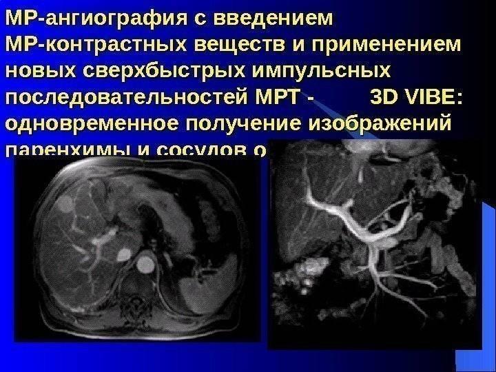 Что такое мрт с контрастом и в чем разница от обычной томографии