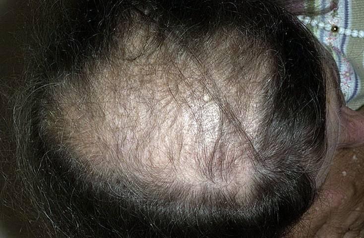 могут ли из за простатита выпадать волосы