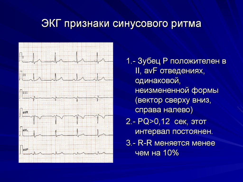 Синусовый ритм: суть, отражение на экг, норма и отклонения, особенности