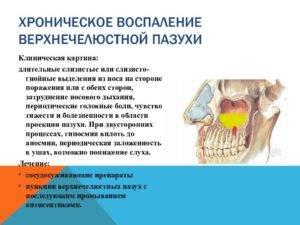 Катаральный синусит острый верхнечелюстной, фронтальный, катаральный этмоидит – симптомы, причины, лечение
