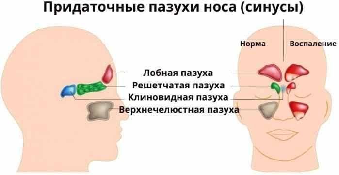 Причины появления кисты верхнечелюстной пазухи и её эффективное лечение