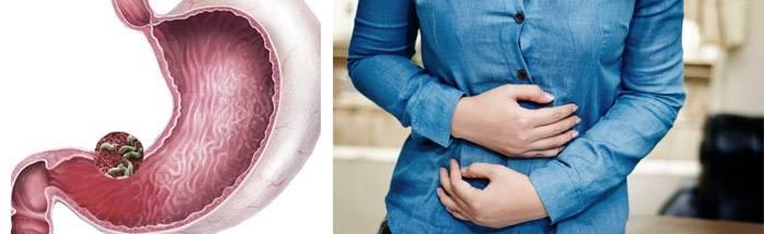 Острый гастрит: симптомы и лечение у взрослых препаратами, народными средствами