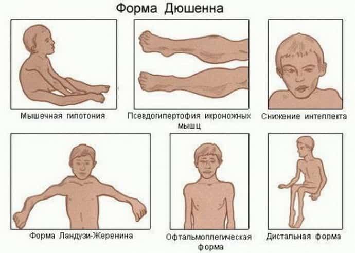 Когда нижние конечности перестают работать, или мышечная спинальная атрофия