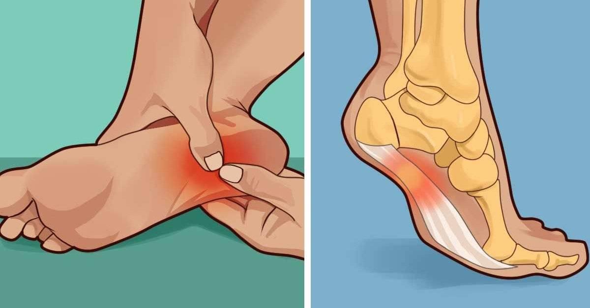 Болят пятки: лечение в домашних условиях и народными средствами