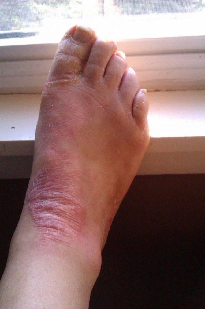 Экзема на ногах причины и лечение диета