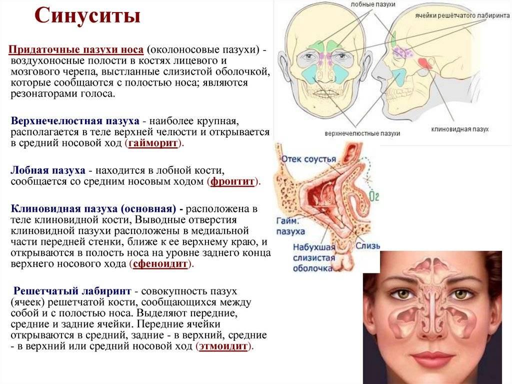 Верхнечелюстной синусит: симптомы и правила лечения