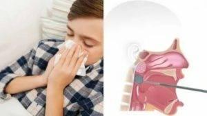 Чем лечить горло у ребенка, если у него охрип голос, а также поднялась температура тела до 39-40 градусов, появились сухой, першащий кашель, слезоточивость.